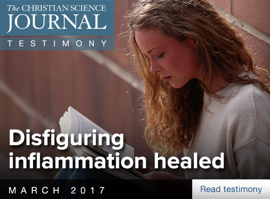 Disfiguring inflammation healed